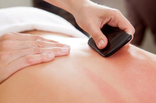 Lilach Shalom Traditional Chinese Medicine - Heating Gua Sha Treatment.