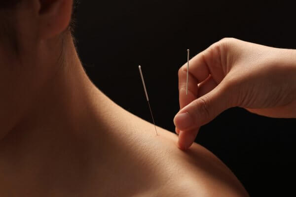 Acupuncture Treatment & Traditional Chinese Medicine - Lilach Shalom .